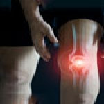 3 Things to try before Knee Replacement Surgery