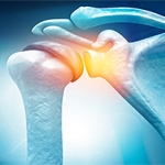 What Causes Rotator Cuff Problems?